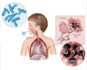 микобактерии туберкулеза