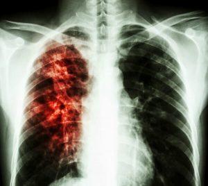 группы диспансерного учета при туберкулезе