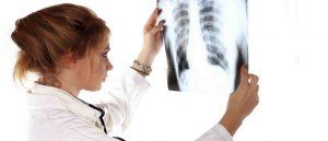 рак легких на рентгеновских снимках
