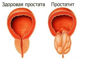 Enterococcus faecalis и хронический простатит