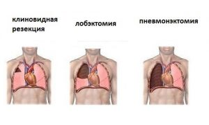 делают операции туберкулеза