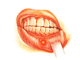 оксолиновая мазь рот