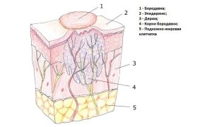 лечение бородавок вифероном