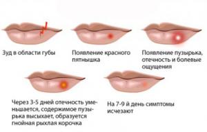 simptomu-gerpesa-1