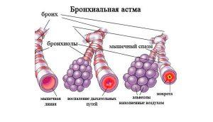 Ацетилсалициловая кислота при бронхиальная астма