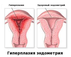 Дюфастон при гиперплазии эндометрия