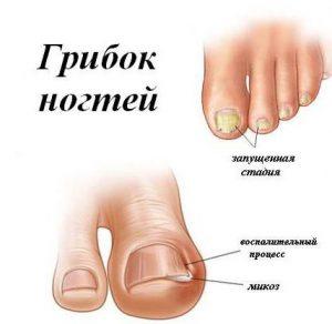 кандид ног