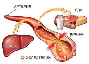 нистатины для снижения холестерина