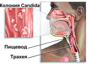 грибок кандида в горле лечение