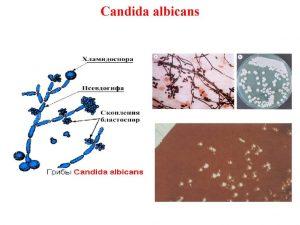 Кандида Альбиканс: основные характеристики грибка, диагностика инфицирования, симптомы и лечение