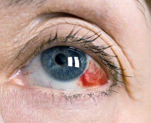 Кровоизлияние в стекловидное тело: причины и лечение